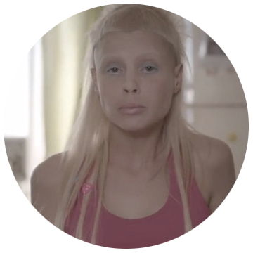 Die Antwoord: Baby's On Fire